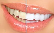 Estética Dental Marbella